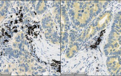 Image Analysis Quality Control Part 2: Tissue Section QC