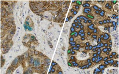 Single & Dual Immunohistochemistry Analysis