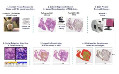 Quantification of Tumour and Stroma Cell Content within Laser Microdissection (LMD) Tissue