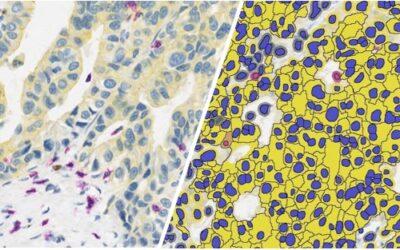 Multiplex Immunohistochemistry Analysis