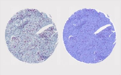 Tissue Microarray Analysis