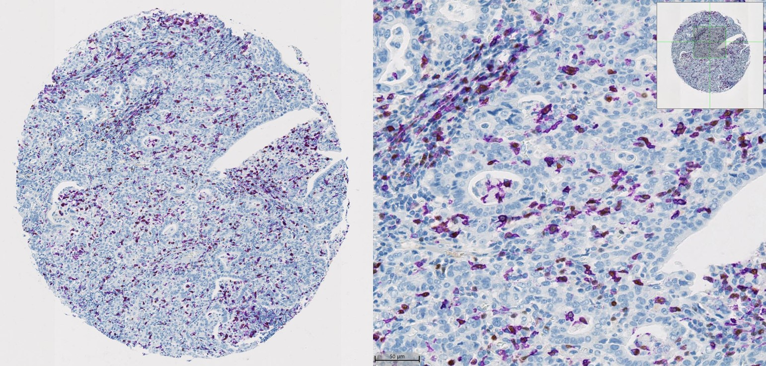 TMA tissue microarray analysis