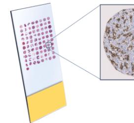 Selecting the Correct Therapeutic Indication: A Case Study UtilisingTissue Microarrays(TMA)withDigital Image Analysis