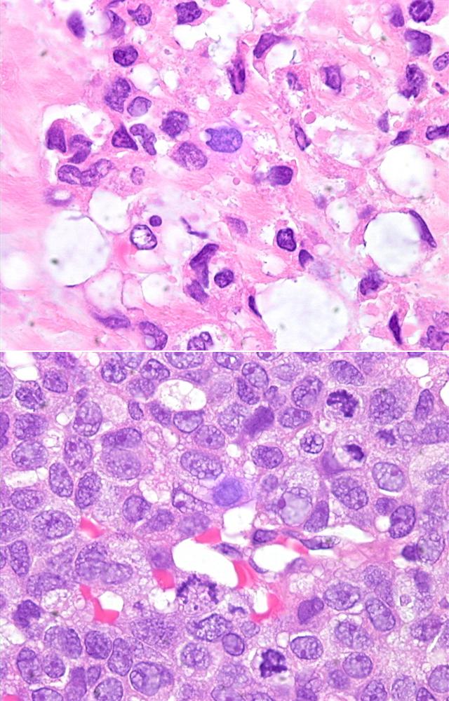 Histology Tissue Fixation