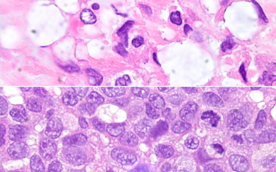 The Silence of the Pathologists: Fixation in Histology and Histopathology